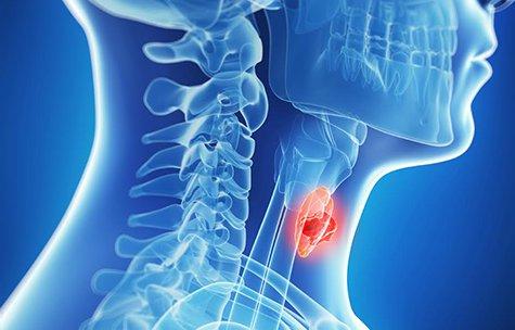 Заболевания щитовидки: важно вовремя распознать симптомы и вылечить причину