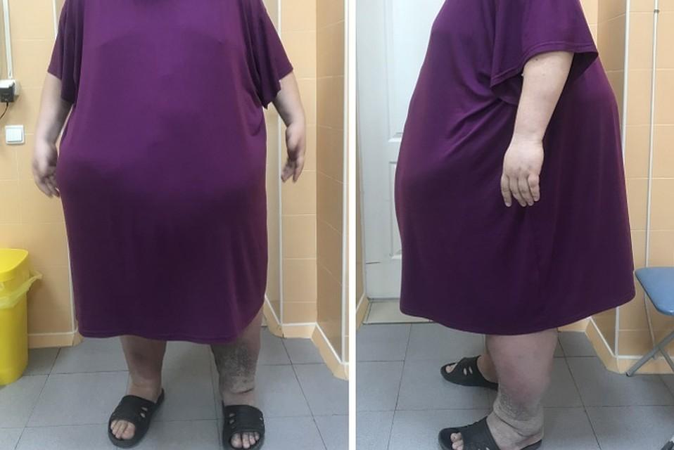 В Ростове-на-Дону хирурги удалили 300-килограммовому пациенту почти весь желудок, чтобы помочь похудеть